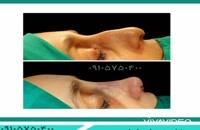 عمل جراحی زیبایی در مشهد