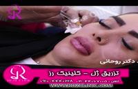 فیلم تزریق ژل | کلینیک رز | 09104440228 | شماره 177
