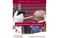کاشت مو به روش میکروگرافت | کلینیک هلیا | 02122810089 | شماره 72