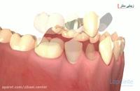 بریج دندان یا پل دندان - دندان مصنوعی - زیبایی سنتر