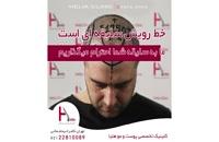 کاشت مو به روش میکروگرافت | کلینیک هلیا | 09120687738 | شماره 74