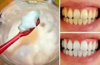 روش های خانگی درمان دندان درد