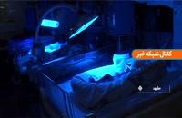تولد نوزادان ۴ قلو در مشهد