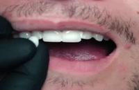 ونیر دندانی