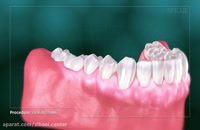 جرم گیری دندان یا بروساژ دندان - زیبایی سنتر