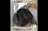 شانه کردن موها بعد از عمل کاشت مو