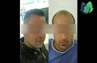 نمونه کارهای کاشت مو در کلینیک آرشیدا