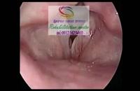 مجهزترین مرکز درمان اختلالات بلع و صوت درالبرز 09121623463|اندیشه خیابان طالقانی
