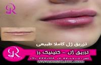 فیلم تزریق ژل | کلینیک رز | 09104440228 | شماره 174