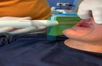 دستگاه Dento-Plasma شرکت دانش بنیان فن آوران سپید جامگان