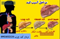 کبدچرب و درمان آن به صورت کامل
