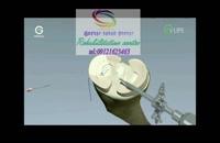 کلینیک آنلاین درمان سکته مغزی 09121623463 قم