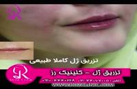 فیلم تزریق ژل | کلینیک رز | 09104440228 | شماره 175