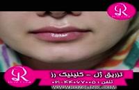 فیلم تزریق ژل | کلینیک رز | 02144067005 | شماره 161