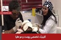 کاشت مو به روش میکروگرافت | کلینیک هلیا | 02122810089 | شماره 9