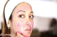 ماسک از بین بردن لک های صورت