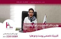 بهترین دکتر کاشت ابرو در تهران کجاست؟ | کلینیک هلیا