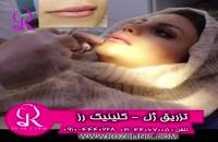 فیلم تزریق ژل | کلینیک رز | 09104440228 | شماره 173