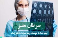 روش های درمان سرطان مغز + پادکست پزشکی سرطان مغز
