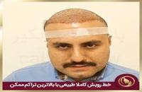 مصاحبه بعد از عمل کاشت مو در مرکز زیبایی تهران