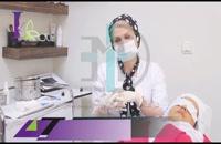 کانولا جهت سابسیژن اسکارهای پوستی