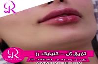 فیلم تزریق ژل | کلینیک رز | 09104440228 | شماره 176