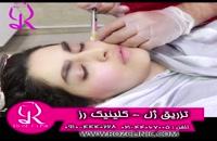 فیلم تزریق ژل   کلینیک رز   09104440228   شماره 183