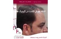 کاشت مو به روش میکروگرافت | کلینیک هلیا | 02122810089 | شماره 70