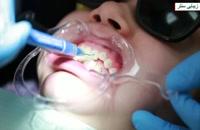 ارتودنسی دندان یا سیم کشی دندان - اصلاح فرم دندان