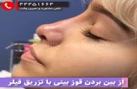 از بین بردن قوز بینی با تزریق ژل